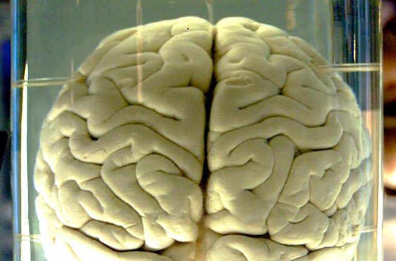 53,06 % de français appelés à se faire enlever leurs prothèses cérébrales défectueuses